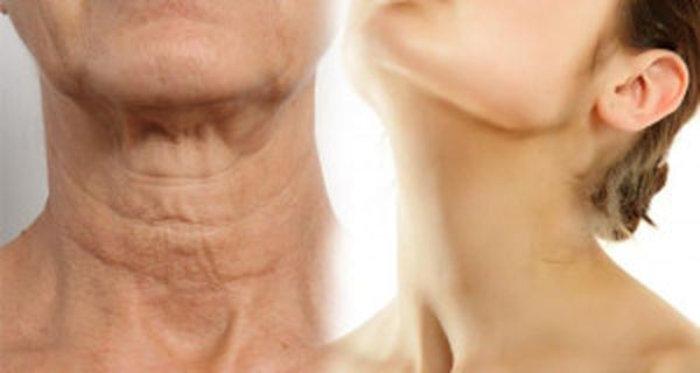 Απλοί τρόποι για να κάνετε τον λαιμό σας να φαίνεται νεότερος