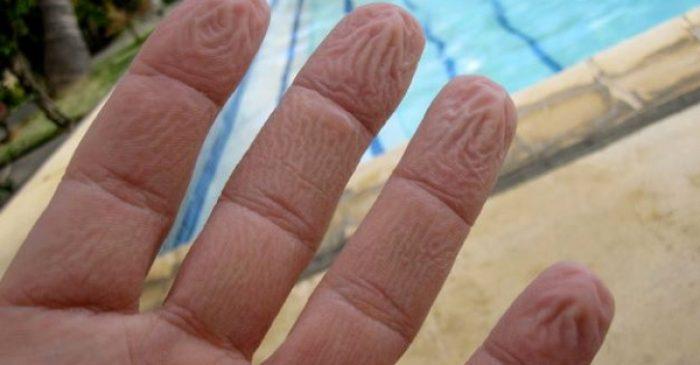 Γιατί «ζαρώνουν» τα χέρια σας στο νερό; Όχι δεν είναι αυτό που νομίζετε…