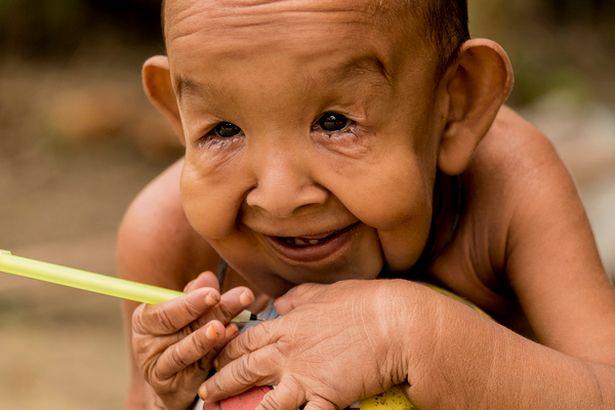 Ο πραγματικός «Μπέντζαμιν Μπάτον»: Δείτε τον 4χρονο που ζει σε σώμα 80χρονου!