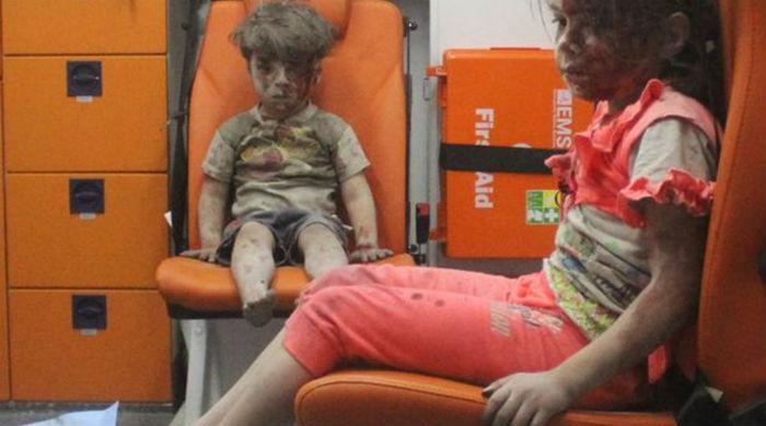 Αν σοκάρεστε από τα τραυματισμένα παιδιά, κάντε κάτι!