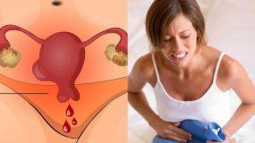 7 πόνοι χαμηλά στη κοιλιά που δεν πρέπει να παραβλέψετε