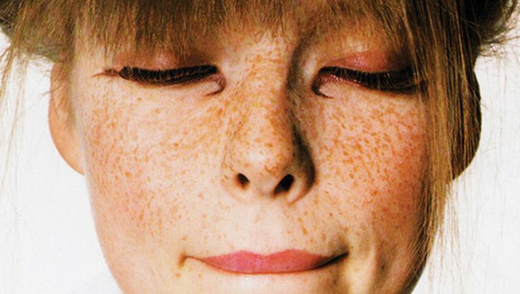 Δέρμα χωρίς πανάδες και δυσχρωμίες : Όλες οι συμβουλές!