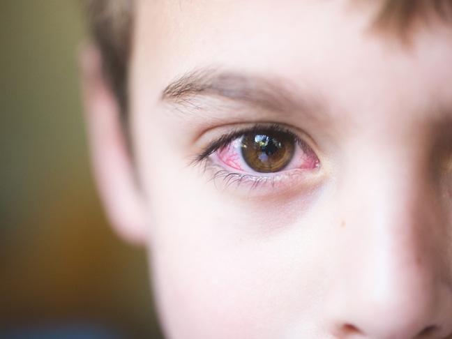 H επιπεφυκίτιδα στα παιδιά και τα βρέφη