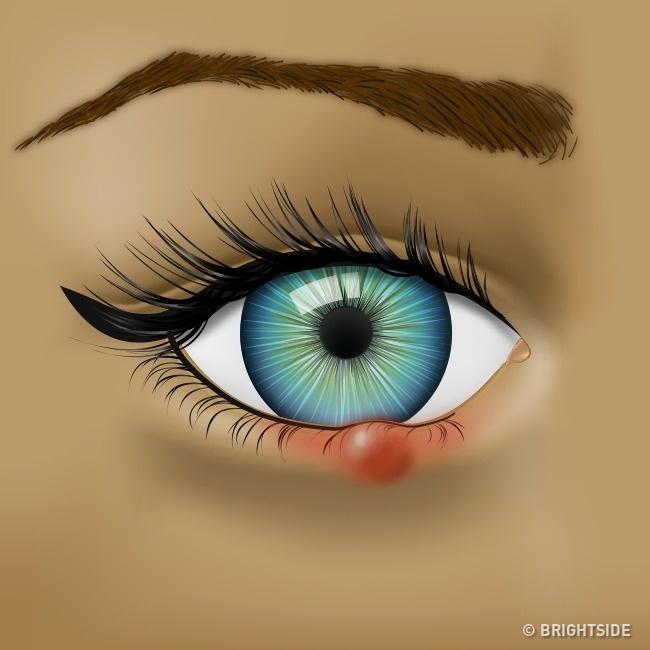 8 πράγματα που προσπαθούν να σας πουν τα μάτια σας για την υγεία σας