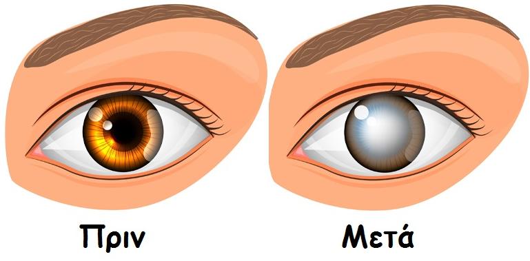 Η καθημερινή συνήθεια που μπορεί να προκαλέσει τύφλωση και εσείς δεν ξέρατε!