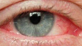 Ραγοειδίτιδα: H πιο άγνωστη ασθένεια των ματιών