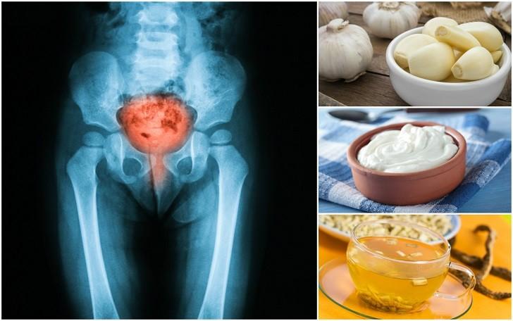 12 σπιτικές συνταγές για την καταπολέμηση της ουρολοίμωξης  χωρίς τη χρήση αντιβιοτικών