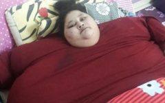Μεταφέρεται στην Ινδία για χειρουργείο η πιο παχύσαρκη γυναίκα στον κόσμο!