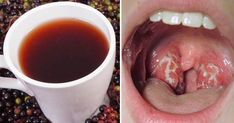10 θεραπείες για να θεραπεύσετε τη φαρυγγίτιδα σε χρόνο μηδέν!