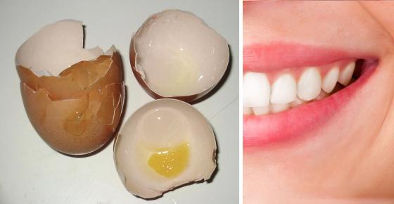 Πώς να απαλλαγείτε από την τερηδόνα των δοντιών χρησιμοποιώντας τσόφλια αυγών;