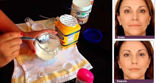 Αυτή η γυναίκα βάζει στο πρόσωπο της αυτή τη μάσκα.. και μόλις σε μια εβδομάδα σχεδόν όλες οι ρυτίδες έχουν μαλακώσει