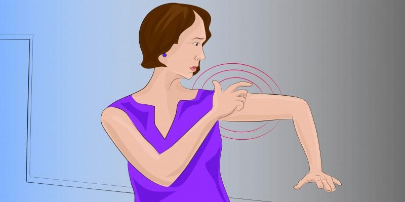 Τα συμπτώματα του εγκεφαλικού επεισοδίου που πρέπει να γνωρίζουν ιδιαίτερα οι γυναίκες!