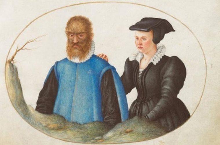 Το αληθινό ζευγάρι «Η πεντάμορφη και το τέρας» δεν είχε καθόλου ευτυχισμένο τέλος