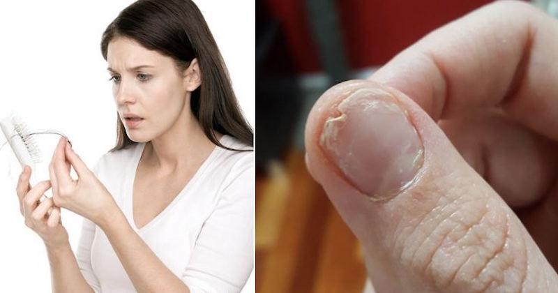 Xρειάζεται να φάτε αυτό αν έχετε απώλεια μαλλιών, εύθραστα νύχια ή αν δεν κοιμάστε καλά!