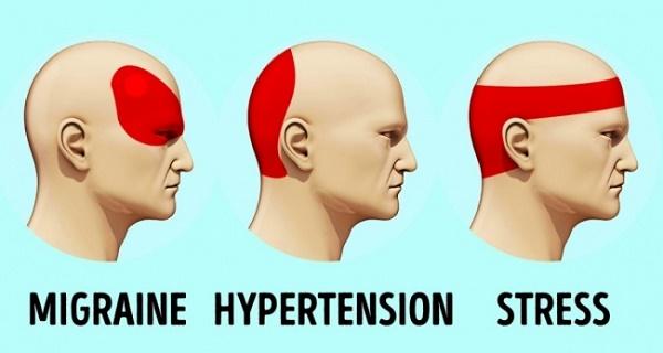 Ξεφορτωθείτε το πονοκέφαλο σε μόλις 5 λεπτά χωρίς τη χρήση φαρμάκων!