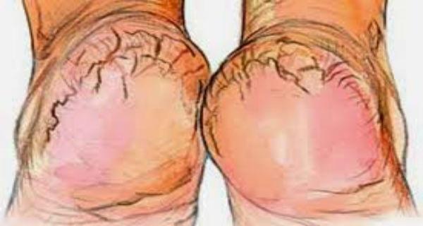 Μήπως βαρεθήκατε τις σκασμένες φτέρνες; Εδώ θα βρείτε την πιο αποτελεσματική και φθηνή θεραπεία για να απαλλαγείτε από αυτές!