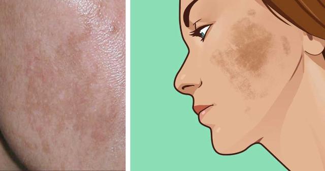 6 Φυσικοί Τρόποι για να Αντιμετωπίσετε τον Αποχρωματισμό του Δέρματος