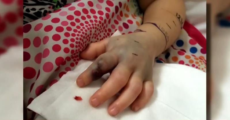 Η ιστορία του 2χρονου κοριτσιού που το δάγκωσε φίδι στο παιδικό σταθμό