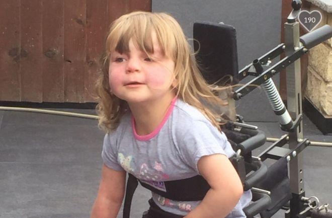 To μικρό κοριτσάκι που διαγνώστηκε με σύνδρομο Sturge-Weber χαμογελά ξανά!