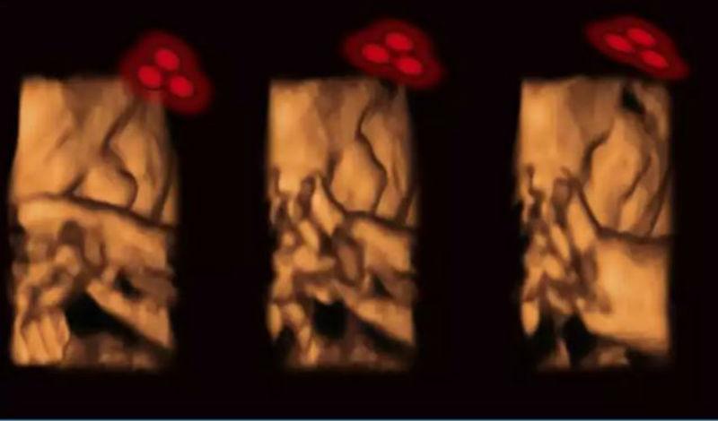 Tα έμβρυα αναγνωρίζουν τα πρόσωπα από την μήτρα!
