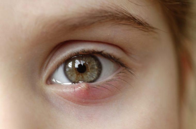 Κριθαράκι στο μάτι: Αίτια, θεραπεία και πρόληψη
