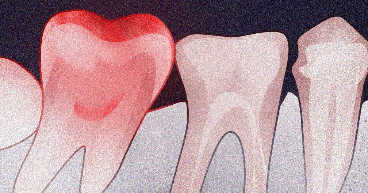 10 σημάδια της τοξικης μολυνσης των δοντιων και πως να τα αντιμετωπίσετε
