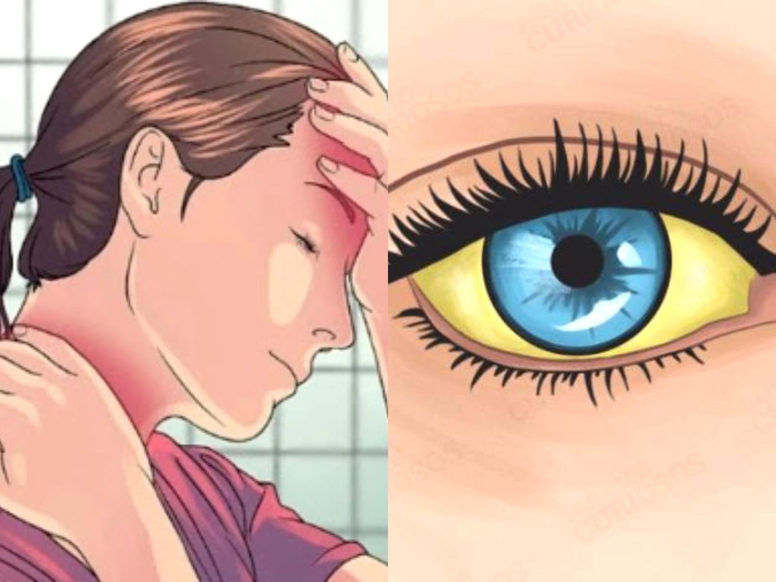 Τα συμπτώματα της έλλειψης πρωτεΐνης που κάθε γυναίκα πρέπει να γνωρίζει!