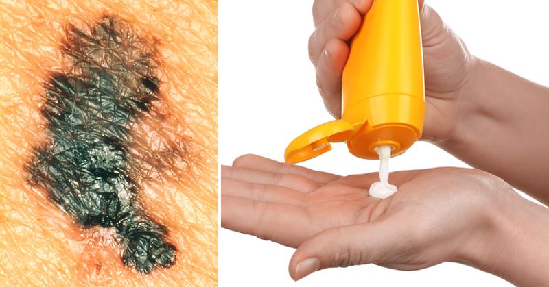 6 επικίνδυνα συστατικά των αντηλιακών που πρέπει να προσέξετε!