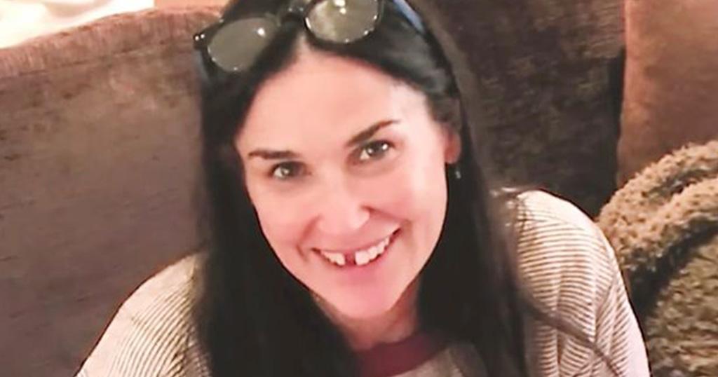Η Ντέμι Μουρ έχασε τα μπροστινά της δόντια και μας προειδοποιεί γιατί