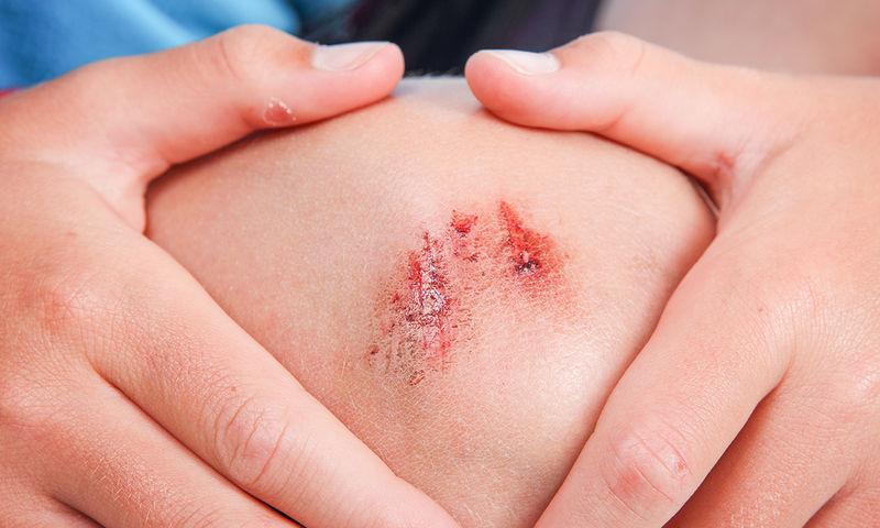 Μικροτραύματα στα παιδιά: Επουλώστε τα γρήγορα με τα παρακάτω tips