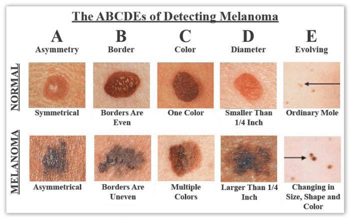 Ο οδηγός αυτός ανίχνευσης του καρκίνου του δέρματος μπορεί να σας σώσει τη ζωή
