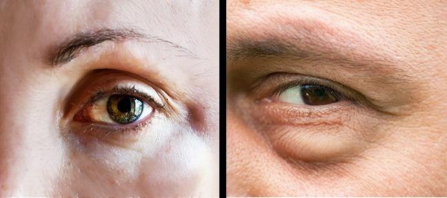 3 σοβαρά σημάδια ότι έχετε μια αλλεργική αντίδραση