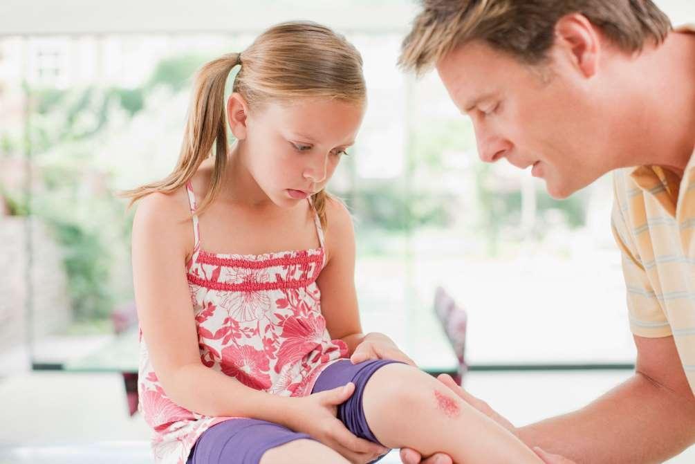 Το καλοκαίρι οι τραυματισμοί των παιδιών αυξάνονται! Πώς να τους αντιμετωπίσετε!