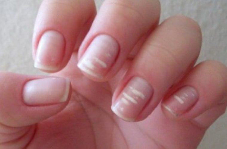Λευκονυχία: γιατί έχετε λευκά σημάδια στα νύχια σας;