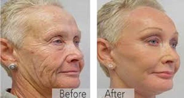 Εξαφανίστε τα σημάδια γήρανσης με τον πιο αποτελεσματικό τρόπο!