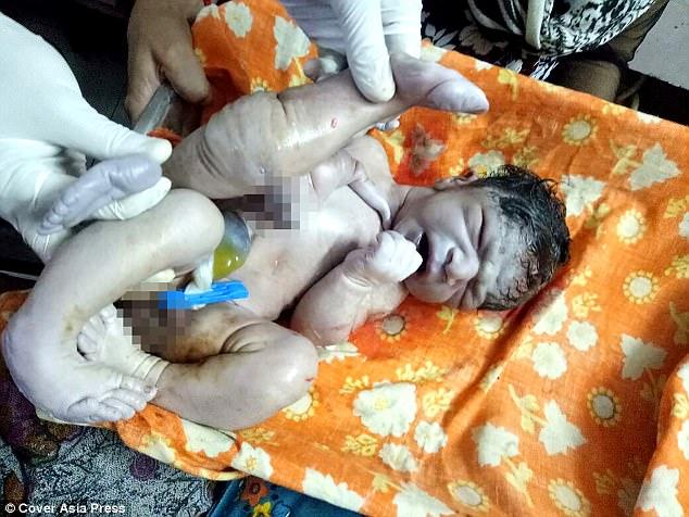 Μωράκι γεννήθηκε με δύο παραπάνω πόδια και πέος αλλά οι γιατροί το έσωσαν