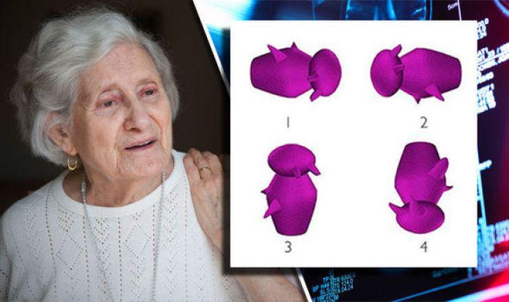 Ποιό Σχήμα Διαφέρει Από Τα Άλλα; ΑΥΤΟ Το Τεστ «Προβλέπει» Το Αλτσχάιμερ Λένε Επιστήμονες! -ΦΩΤΟ