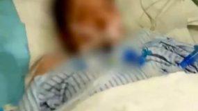 Απάνθρωπη κτηνωδία: Νεκρή 15χρονη μετά από «καψόνια» του αφεντικού της