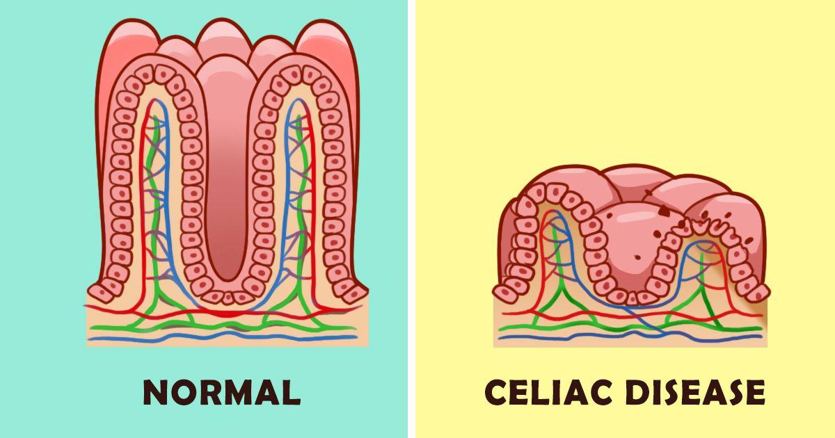 Κοιλιοκάκη: 9 συμπτώματα που συνήθως αγνοούμε