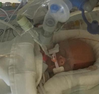 Μητέρα 5 παιδιών έχει συχνούς πονοκεφάλους και διαγιγνώσκεται με θανατηφόρο καρκίνο στον εγκέφαλο, αλλά αυτό δεν είναι το χειρότερο νέο