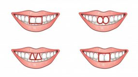 Τι δείχνουν τα δύο μπροστινά δόντια για το χαρακτήρα σας;