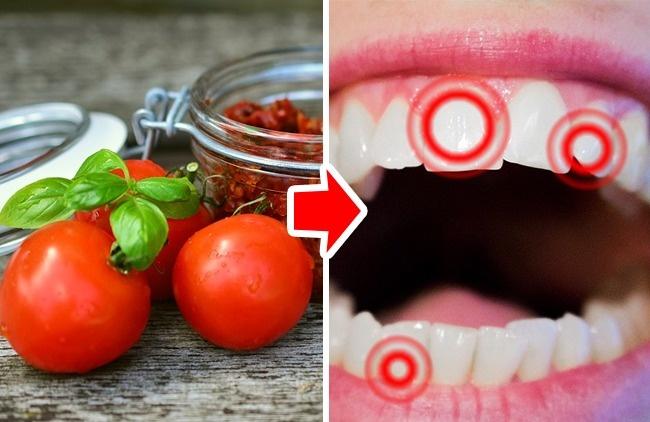 Τα 10 φαγητά και ποτά που βλάπτουν σοβαρά τα δόντια μας