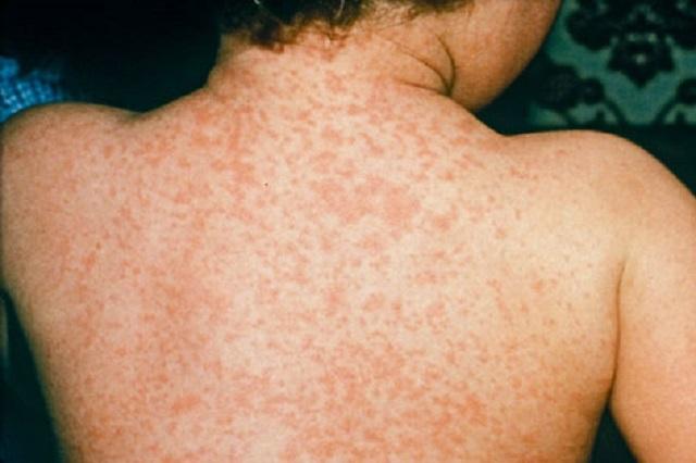 Τι πρέπει να κάνω για να προστατευτώ από την ιλαρά