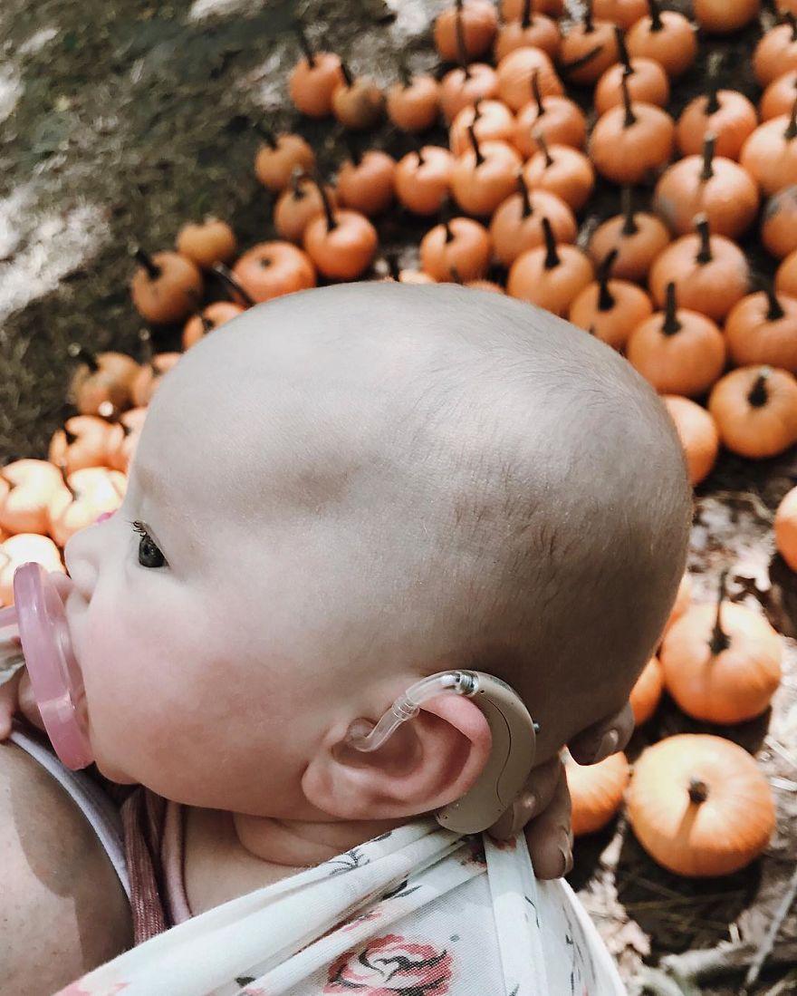 Αδύνατο να μην κλάψεις: Μωρό ακούει για πρώτη φορά της φωνή της μητέρας του
