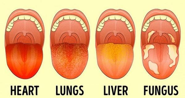 Τι δείχνει το χρώμα της γλώσσας σας για την υγεία σας;;;
