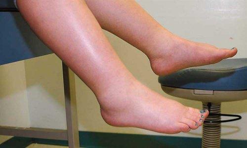 3 συστάσεις για να ελέγξετε την κατακράτηση υγρών