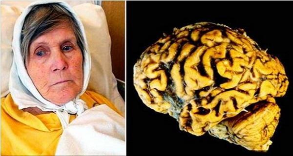 Η γυναίκα αυτή αποκαλύπτει πώς μπορεί να προληφθεί κατά 100% η νόσος του Αλτσχάιμερ κάνοντας απλά αυτή την άσκηση καθημερινά