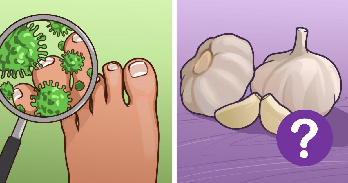 8 εκπληκτικές φυσικές θεραπείες για να απαλλαγείτε από τις μυκητιασικές λοιμώξεις
