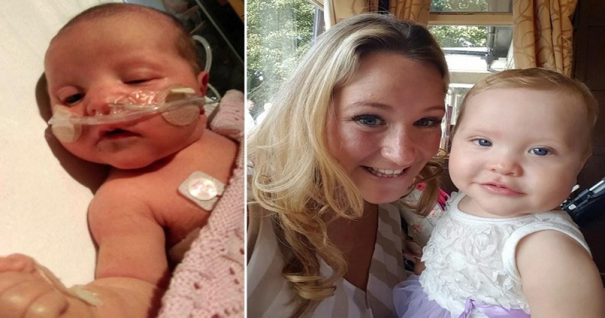 Μωρό γεννήθηκε με νερό αντι για αίμα στο κορμάκι του. Και οι γιατροί δεν έχουν ξαναδεί κάτι τέτοιο.