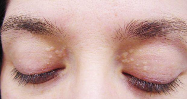 Πώς να αφαιρέσετε αυτές τις κίτρινες κηλίδες που βρίσκονται γύρω από τα μάτια σας;